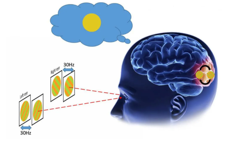 The image contains : Illustration of brain with wires connected to electrodes.